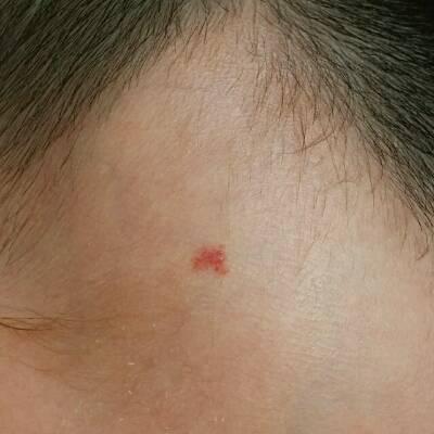 宝宝额头上有红色印记,生下来10天以后才有的,双眼皮上有红血丝,我想