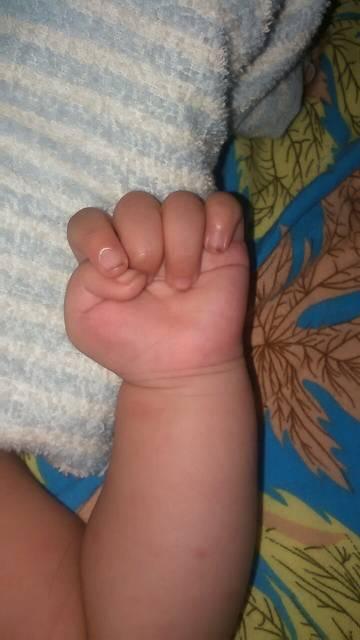意间发现孩子有拇指内扣的问题,急死了