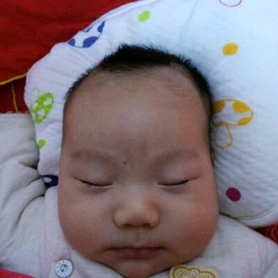宝宝头睡偏了 左边高右边低 太阳穴有点凹陷 怎么办图片