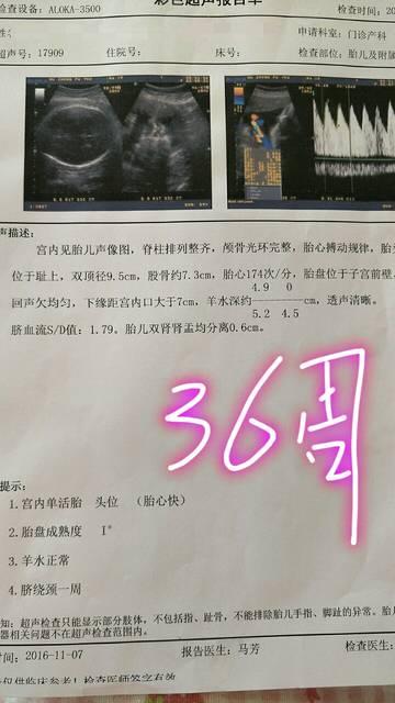 麻烦问下大家怀孕36周双胎宝宝有多大