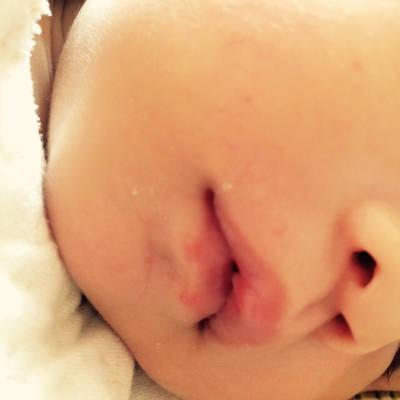 可爱小孩嘴唇破的图片大全