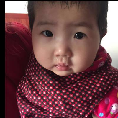 宝宝10个半月了,流清鼻涕,流眼泪,今天第一天,