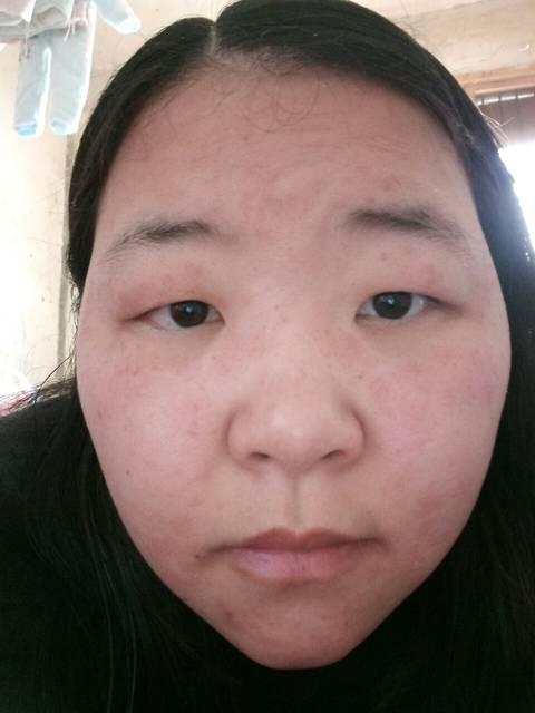 脸上过敏干燥脱皮求助_希望提供怎样的帮助 医