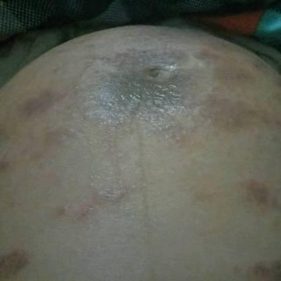 怀孕四个月左右肚子上长很多红点,很痒,抓就破