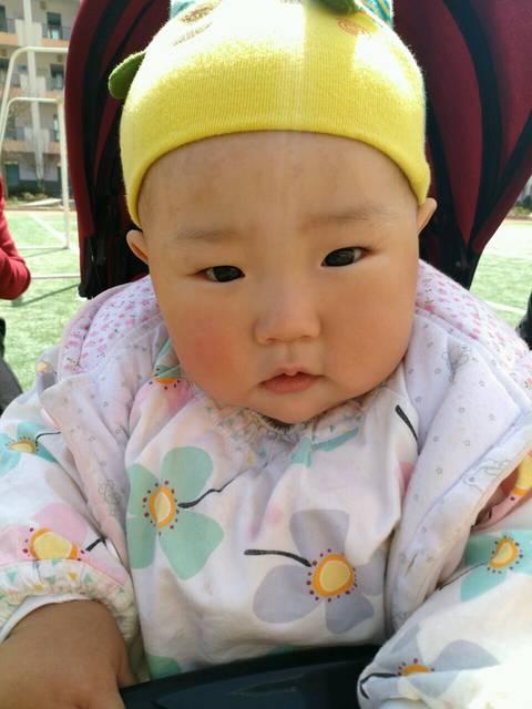 宝宝长斑,怎么办_宝宝八个月了,一晒额头就长