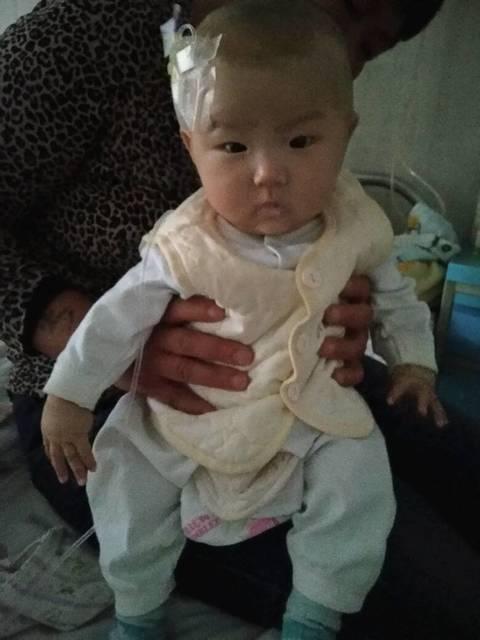 一百天的宝宝咳嗽有痰,可以做雾化吗?_一百天