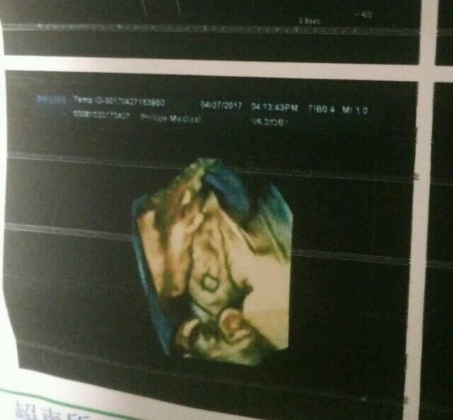 四维彩超胎儿上唇切面不连接,间距1.7mm_昨天