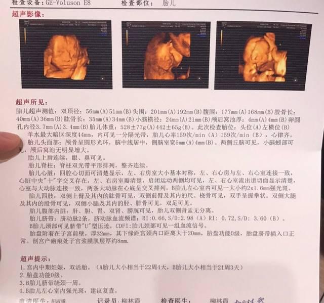 室强光斑,双肾肾盂分离,怎么办