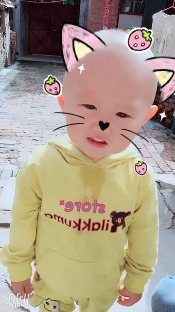 宝宝一岁九个月,会不会有自闭症倾向或者发育