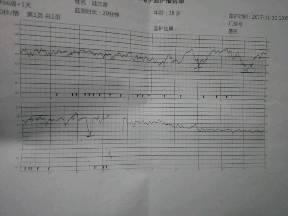 做胎监前十分钟正常,后十分钟胎心从170跌到1