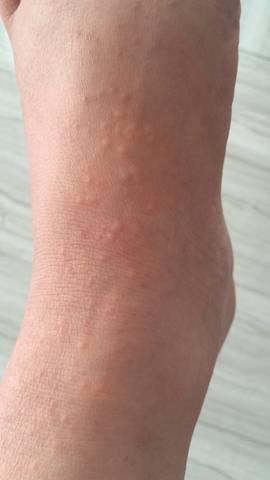 我怀孕36周,双脚背和小腿都长出了红色小疙瘩