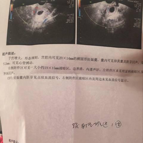 我1月8日做的肋骨隆鼻隆鼻前我打了瘦脸针1月v肋骨梦龙图片