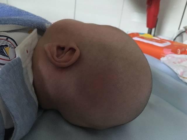 头型侧睡宝宝变长了?怎样v头型齐刘海图片